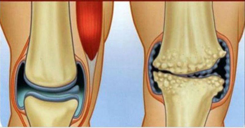 Ako sa navždy zbaviť artrózy (osteoartritídy) pomocou byliniek, stravy a cvičenia