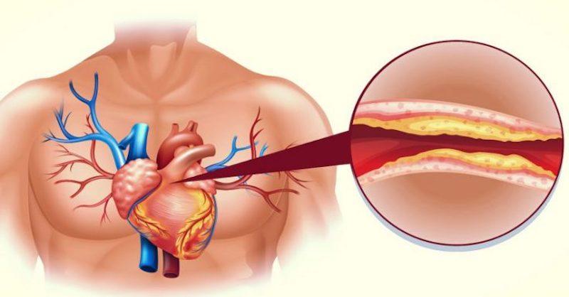 Koniec vysokému cholesterolu a upchatým cievam (prírodná liečba)