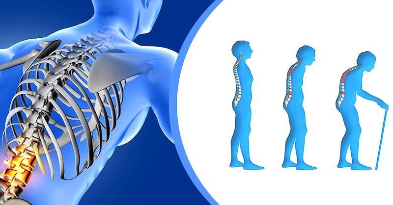 Zdravé a silné kosti: Ako poraziť osteoporózu a predísť zlomeninám
